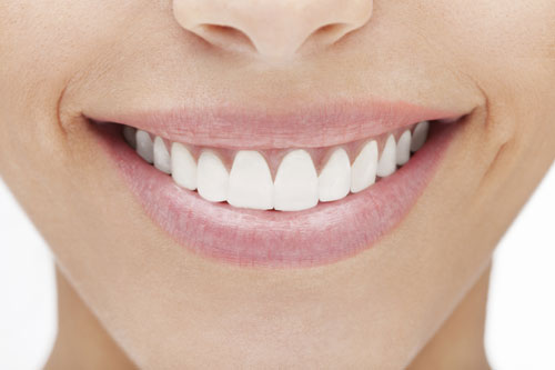 Veneers at Dr. Lebed